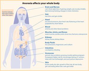 Anorexia nervoasa - cauze, simptome, tratament