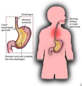 boala de reflux gastroesofagian simptome, tratament