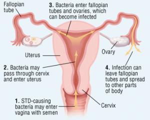Ce este boala inflamatorie pelvina