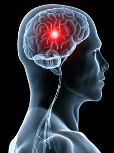 Cefaleea si migrena - cauze, simptome, tratament