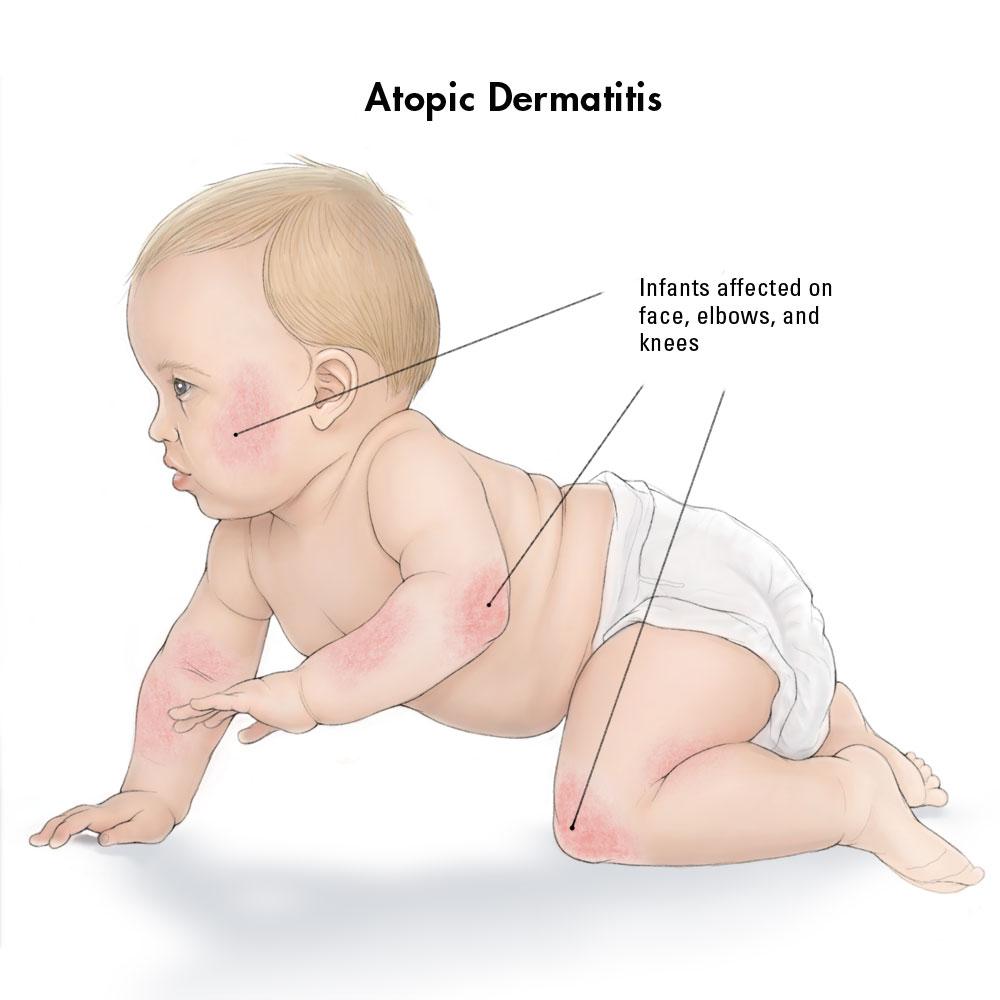 dermatita atopica bebelusi tratament homeopat alergii poze