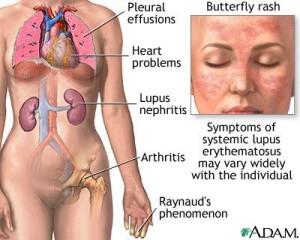 Lupusul eritematos sistemic - cauze, simptome, tratament
