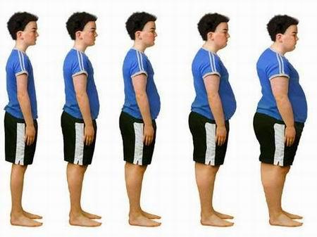 Obezitatea simptome si tratament