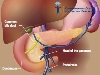 pierderea în greutate după pancreatita cronică