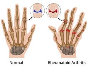 Ce este artrita reumatoida