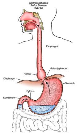 acid gastric cauze si tratament