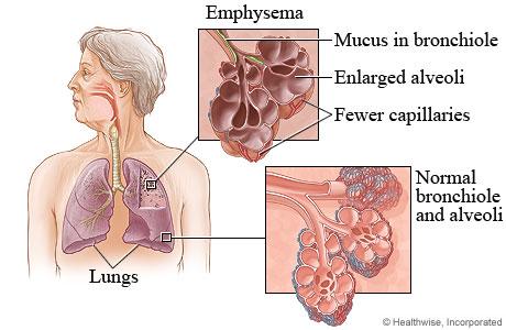 Bronhopneumopatia obstructiva cronica - cauze, simptome, tratament
