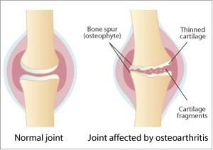 Ce este artroza ?
