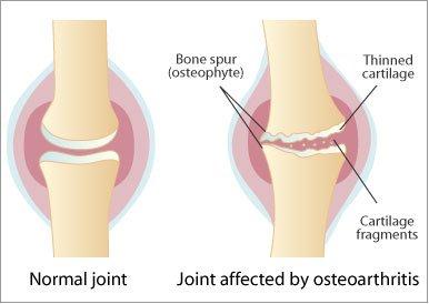 tratamentul artrozei osteochondrozei cervicale