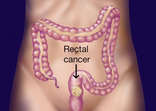 Cum se manifesta cancerul rectal ?