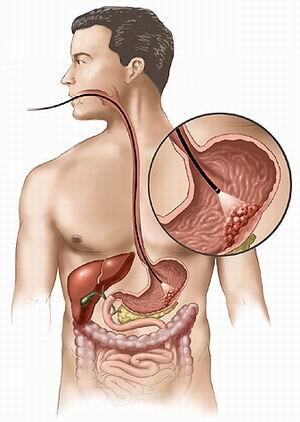 Cancerul gastric - cauze, simptome, tratament