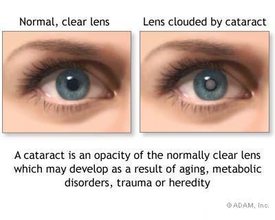 Cum se manifesta cataracta si glaucomul