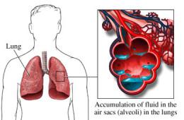 Ce este edemul pulmonar acut ?