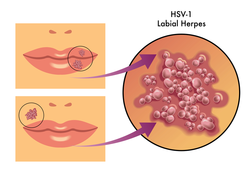 Tupuri de herpes si tratament