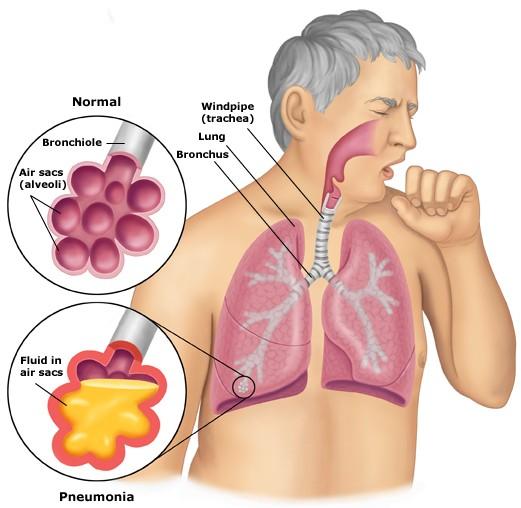 Pneumonia - cauze, simptome, tratament