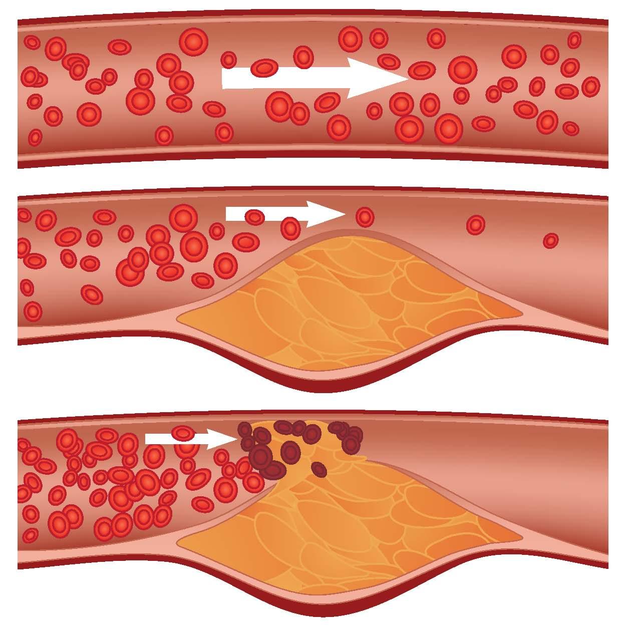Cauzele aterosclerozei